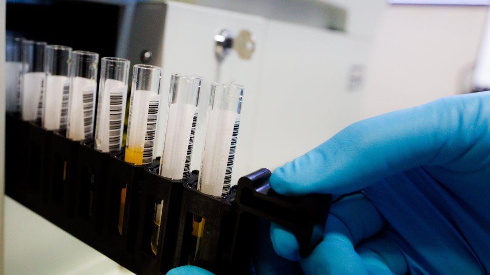 Τα Σκόπια αδυνατούν να προμηθευτούν εμβόλια - Ξεπέρασαν τις 100.000 τα κρούσματα