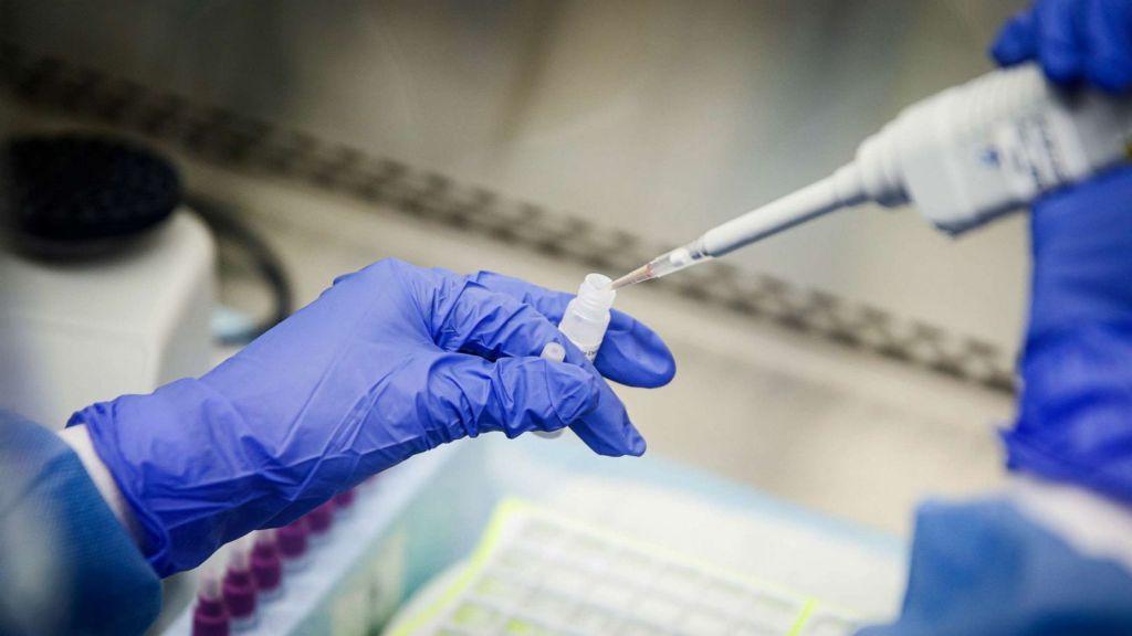 Δυσαρέσκεια της ΕΛΜΕ ν. Λάρισας για τα μοριακά τεστ